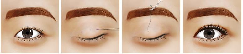 phẫu thuật bấm mí mắt