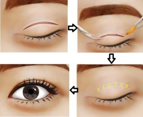 phẫu thuật thẩm mỹ cắt mí mắt