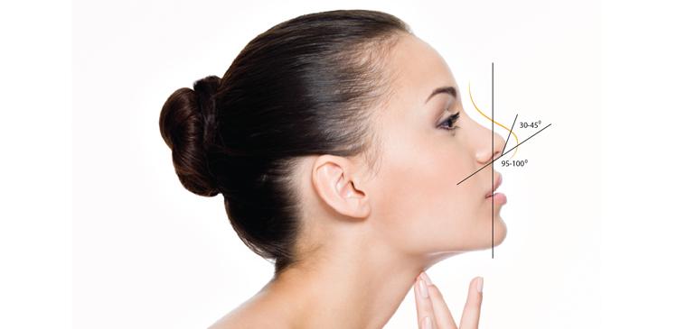 Nâng mũi tự thân