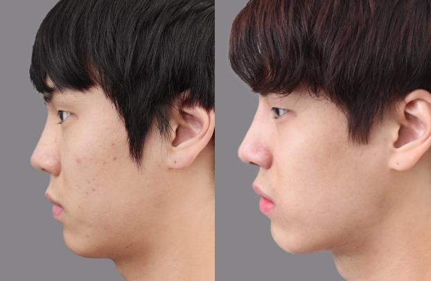 Nâng mũi thẩm mỹ 4