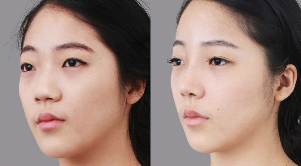 thẩm mỹ mũi không phẫu thuật 1
