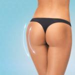 bơm mỡ mông