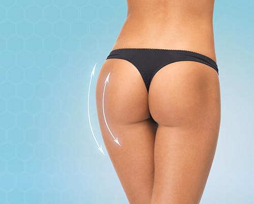 bơm mỡ vào mông