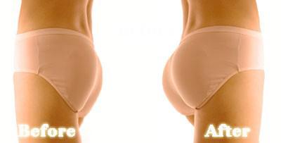 cấy mỡ mông