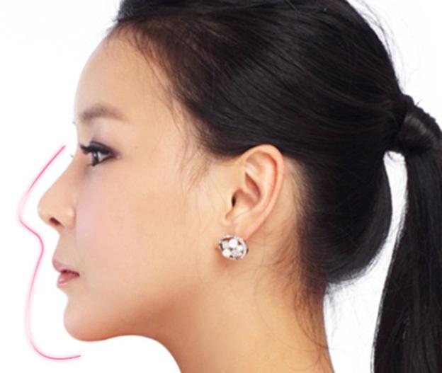 phẫu thuật thẩm mỹ mũi Hàn Quốc 1