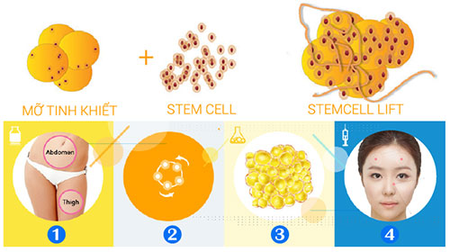 stem-cell-lift-6