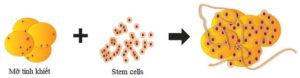 stemcell-lift-thieu-nu-5