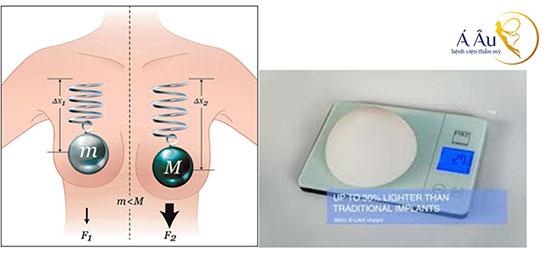 Nâng ngực siêu nhẹ B-shape độc quyền tại Bệnh viện thẩm mỹ Á Âu
