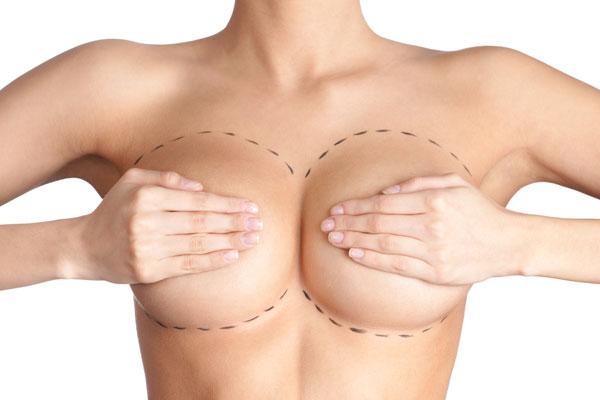 Chi phí cho 1 ca phẫu thuật nâng ngực 1