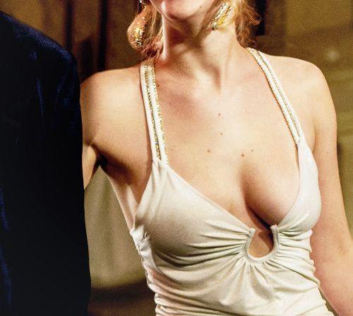Giá nâng ngực sa trễ