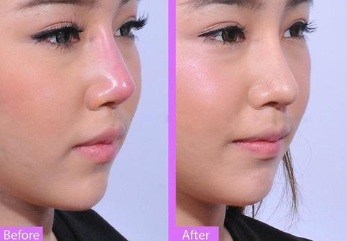 Sửa lại mũi đã phẫu thuật 2