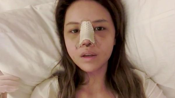 Sửa lại mũi đã phẫu thuật 3