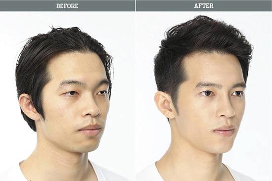 Sửa mũi cho nam giới 1