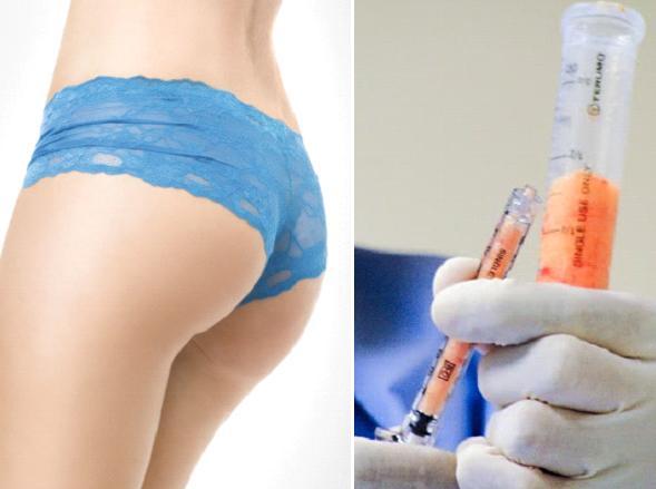bơm mỡ vào mông đẹp