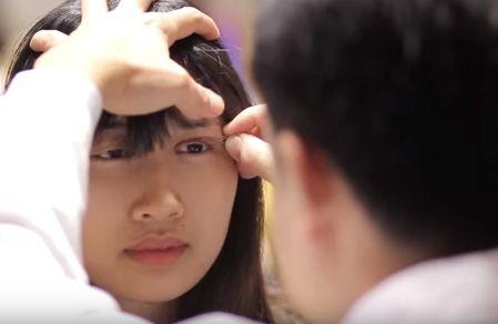 chữa hốc mắt sâu