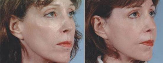 cách chữa hốc mắt sâu