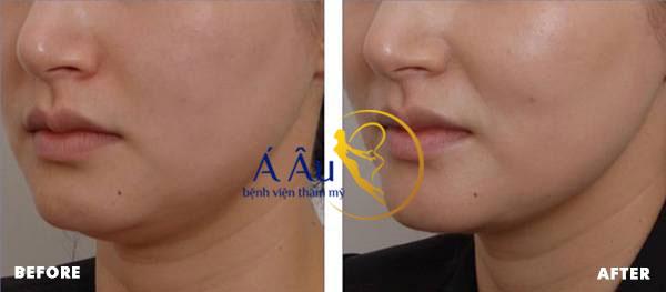Làn da của khách hàng mất hết nếp nhăn và săn chắc hơn sau khi dùng New Thermage (*)