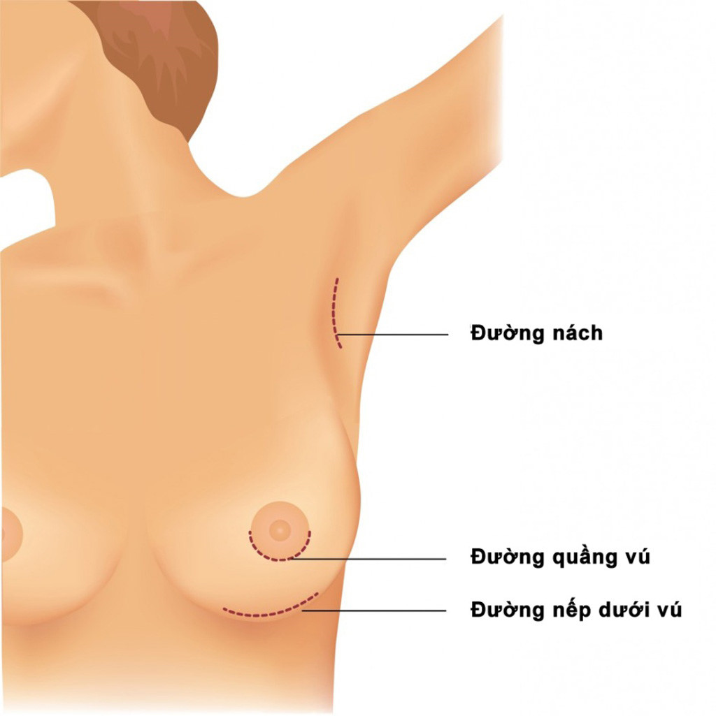 giá 1 ca phẫu thuật nâng ngực 1