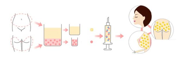 quy trình cấy mỡ