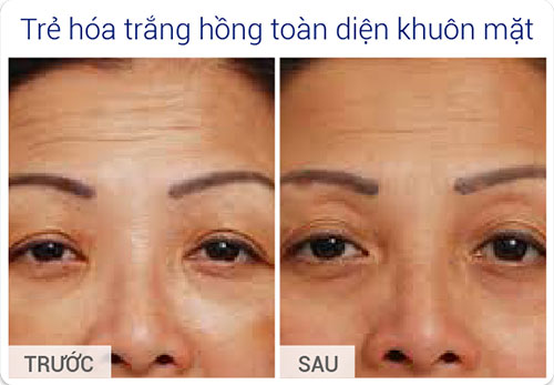 ket-qua-stem-cell-lift-7