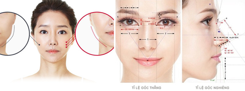 thẩm mỹ khuôn mặt v line