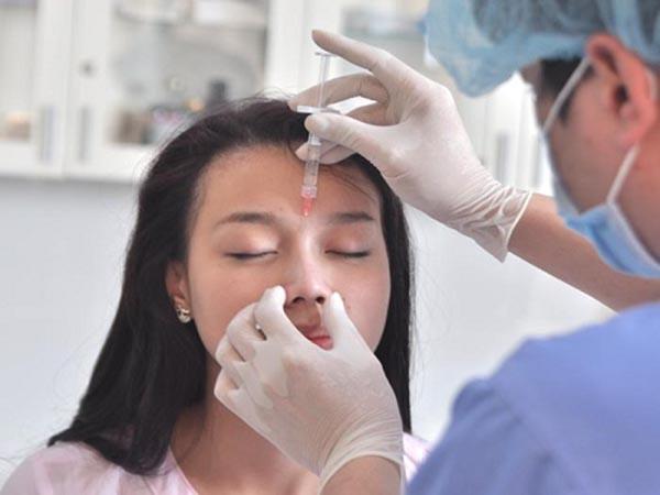 nâng mũi tự nhiên không cần phẫu thuật 1