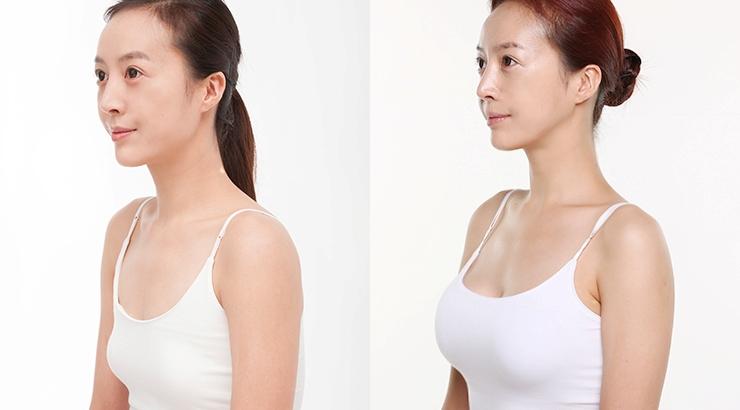 phẫu thuật nâng ngực ở đâu đẹp nhất