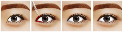 phẫu thuật thẩm mỹ mắt to ra
