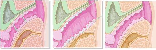 Phương pháp trẻ hóa vùng kín không phẫu thuậtPhương pháp trẻ hóa vùng kín không phẫu thuật