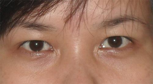 trị mắt bị bụp