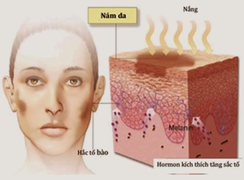 cách chữa trị nám da mặt hiệu quả nhất từ thiên nhiên 6