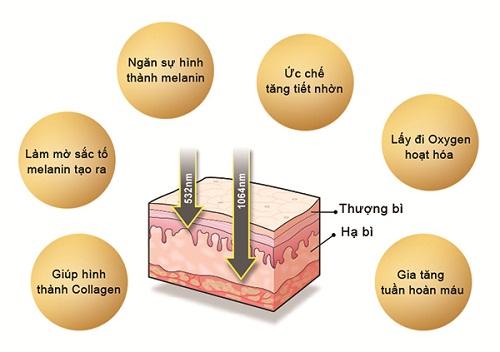 trị nám bằng tia laser có hiệu quả không 2