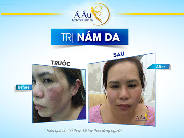 cách điều trị nám da mặt 5