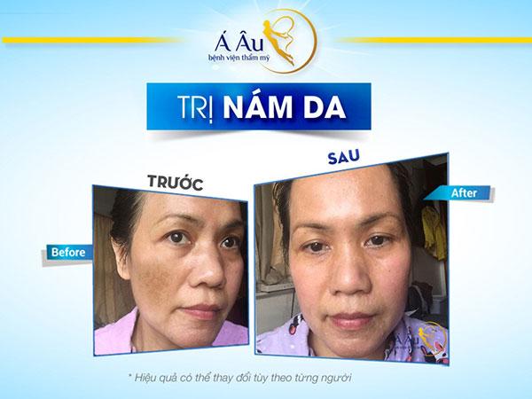 cách trị nám da mặt lâu năm 4