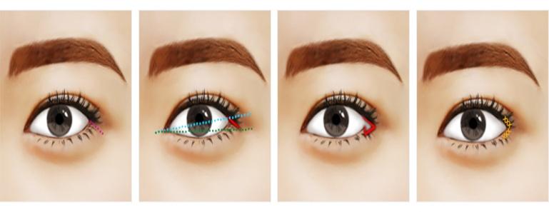 Phẫu thuật mắt xếch bao nhiêu tiền