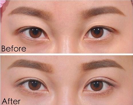 bấm mí mắt dove eyes là gì