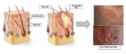 trị sẹo rỗ bằng laser có hiệu quả 2