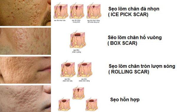 giá điều trị sẹo rỗ 3