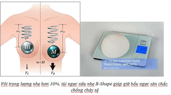 Nâng ngực nội soi bằng túi inspira
