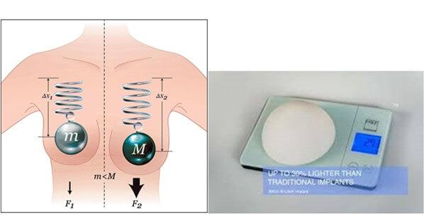 Với trọng lượng nhẹ hơn 30%, túi ngực siêu nhẹ B-Shape giúp giữ bầu ngực săn chắc chống chảy xệ