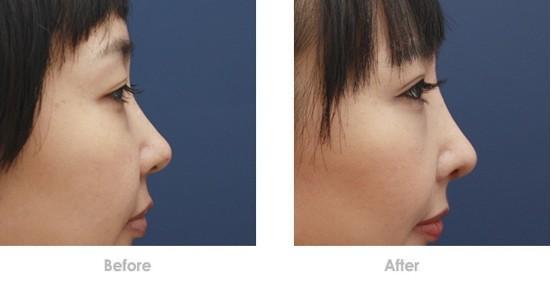 Phẫu thuật thẩm mỹ mũi ở đâu đẹp