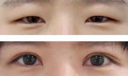 thẩm mỹ mắt to mắt nhỏ