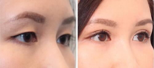 thẩm mỹ mắt to là gì