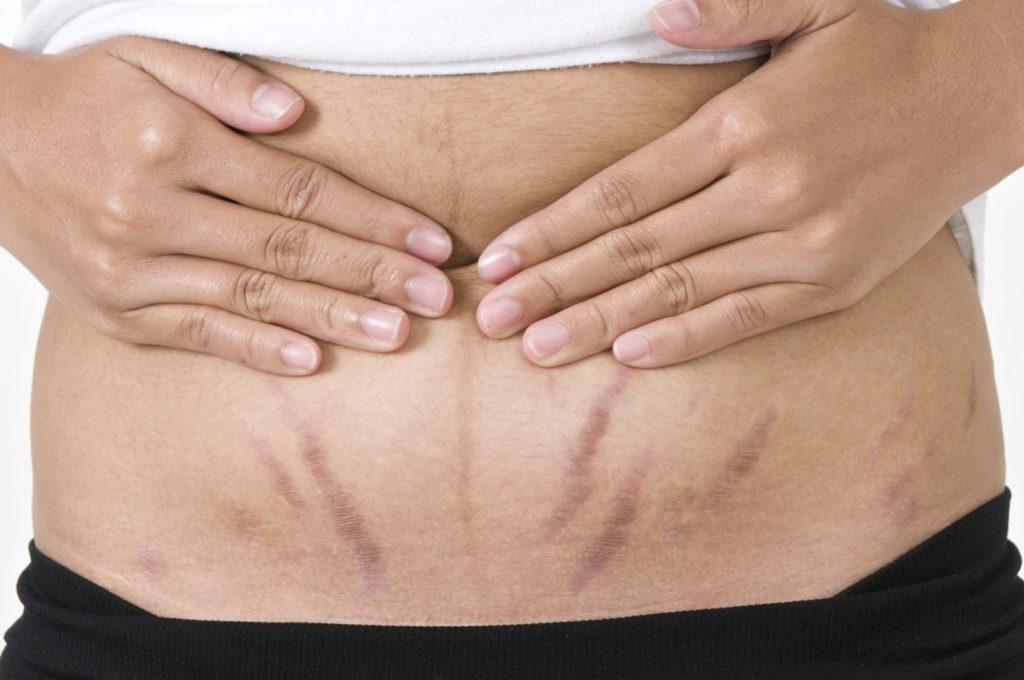 trị rạn da bụng sau sinh 1