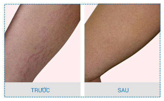trị rạn da ở bắp chân 4