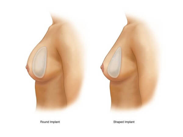 túi nâng ngực Mentor