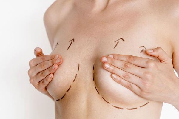 cách chăm sóc ngực chảy xệ