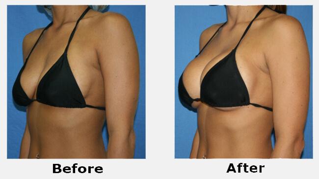 cách khắc phục ngực chảy xệ sau sinh