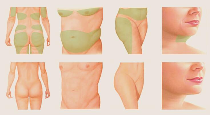 Hình ảnh chi tiết về hút mỡ không phẫu thuật Pharaon Lipo