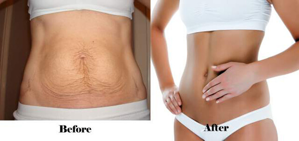 trị rạn da sau giảm cân 7